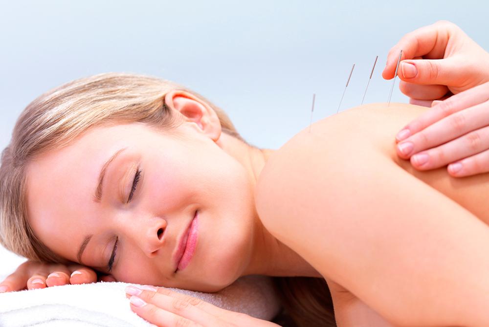 Иглоукалывание при беременности