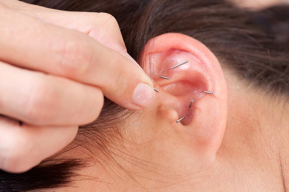 Аурикулотерапия — диагностика и лечение по ушной раковине