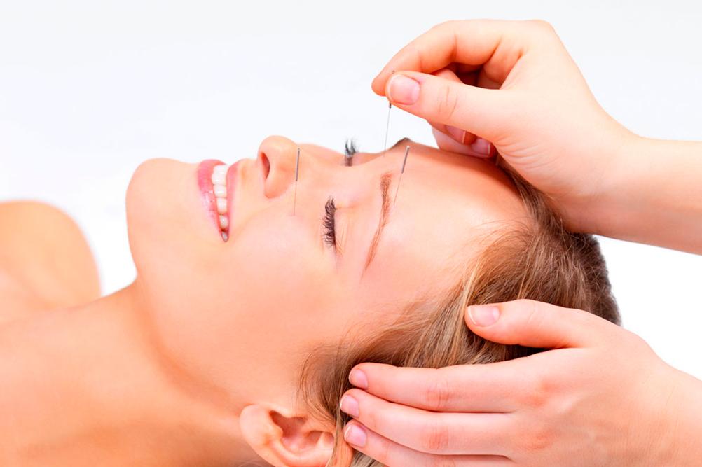 Рефлексотерапия и омоложение лица