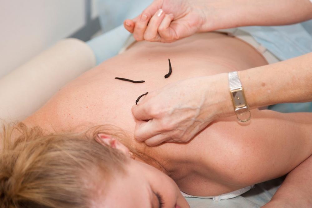 Лечение пиявками в гинекологии