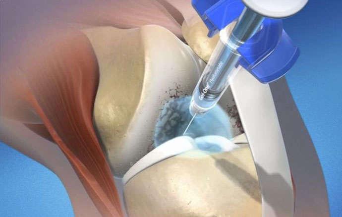 Применение PRP-терапии в ортопедии и травматологии